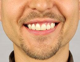 Facial hair © Trofimov Denis/Shutterstock.com