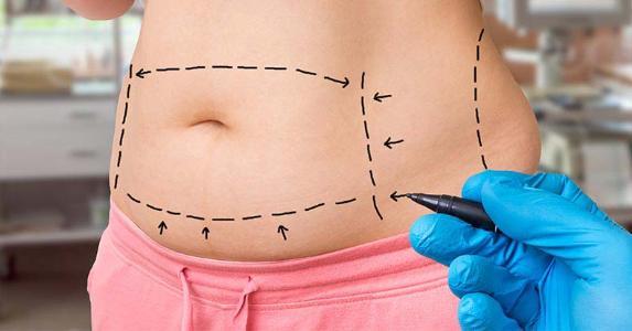 Stomach drawn for tummy tuck   andriano.cz/Shutterstock.com